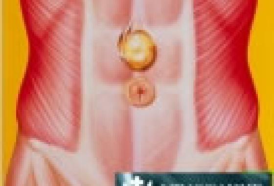 Η χειρουργική αντιμετώπιση μιας ομφαλοκήλης
