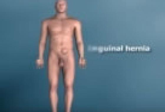 Η χειρουργική αποκατάσταση της βουβωνοκήλης με κινούμενα σχέδια
